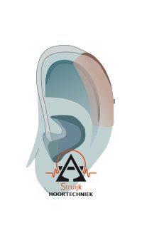 Achter het oor gehoorapparaat