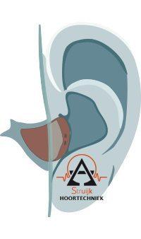 in het oor hoortoestel